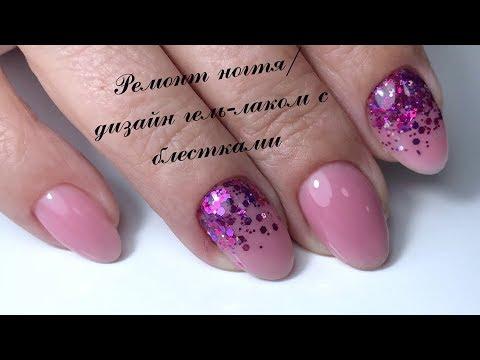 Ремонт ногтя/дизайн гель-лаком с блестками