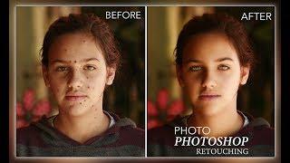 Photoshop eğitimi | Photoshop cilt temizleme | imagenomic portraiture 3 kullanımı