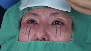 高須クリニック  二重まぶた全切開法に準じた上まぶたたるみ取り手術中の映像  美容整形外科動画