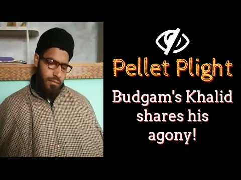 Pellet Plight: Budgam's Khalid shares his agony!