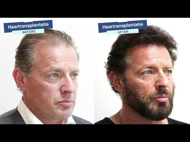 Before&After Hair Transplant