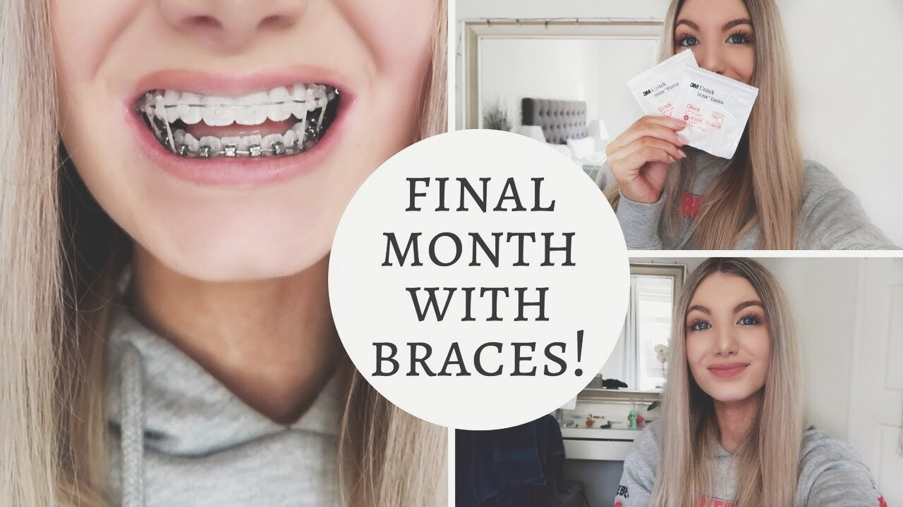 I Got Elastics My Last Braces Tightening Youtube