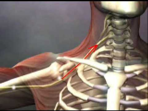 Nerve Flossing and Stretching for Carpal Tunnel Syndrome