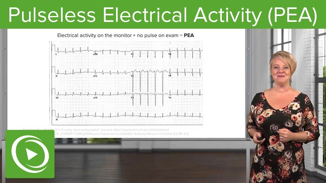 Pulseless Electrical Activity (PEA) – Emergency Medicine | Lecturio
