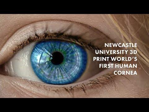 0 - Forscher aus Newcastle entwickeln weltweit erste 3D-gedruckte menschliche Hornhaut