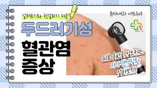 [류마내과] 피부 질환이라고만 생각했던 두드러기 증상,…