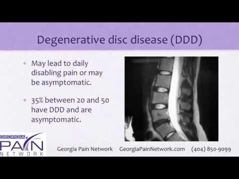 hqdefault - Back Pain Clinics In Georgia