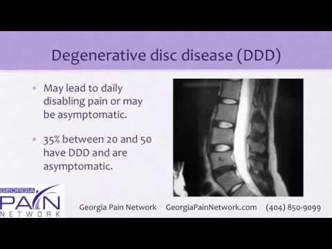 Back Pain Treatment for Degenerative Disc Disease at Georgia Pain Clinics