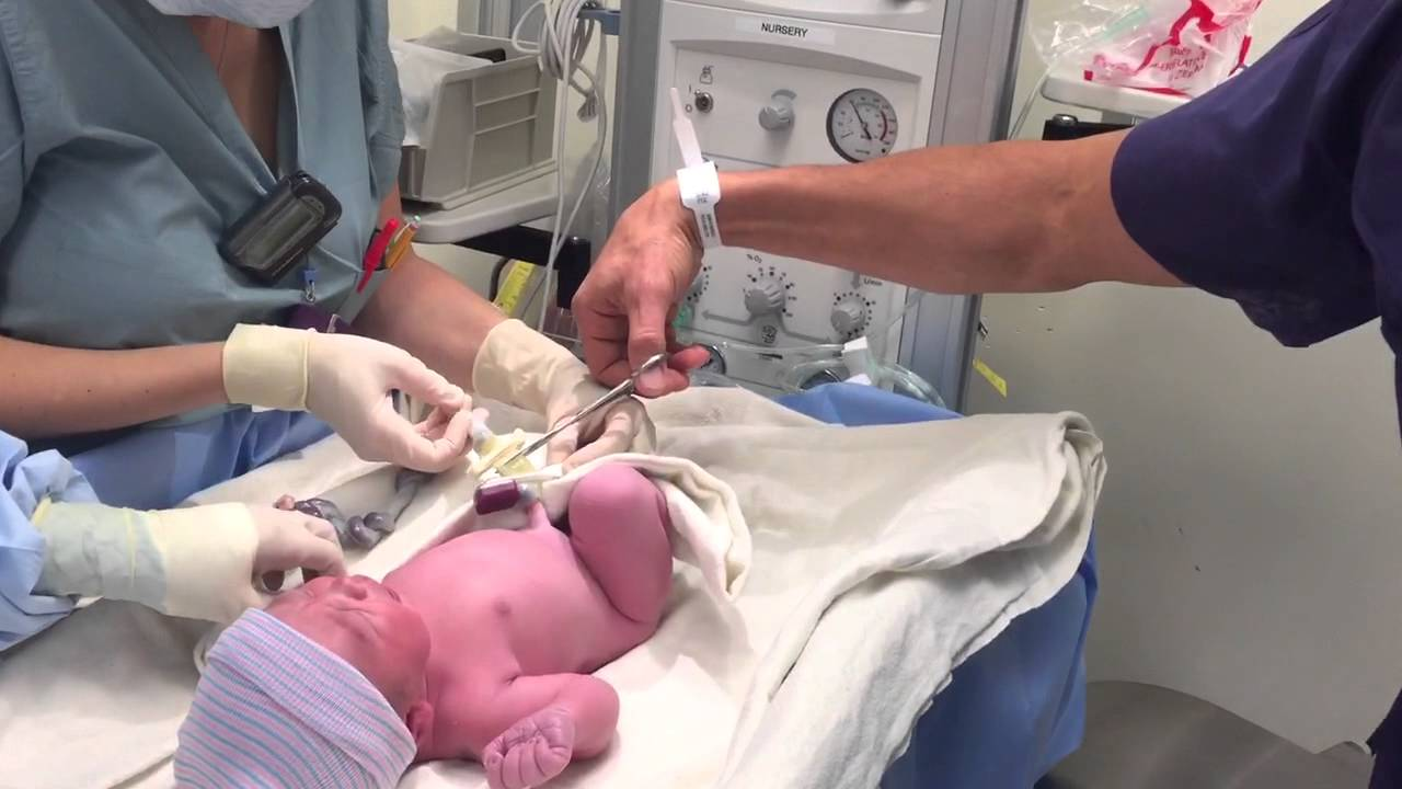 Cutting the umbilical cord of my daughter - YouTube