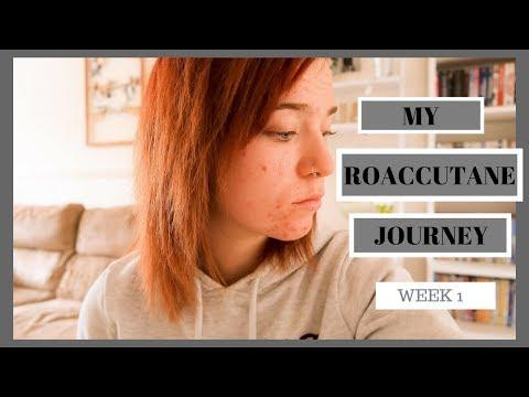 My Roaccutane Journey Part 1