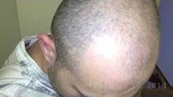minoxidil 5% review -  2 months photos
