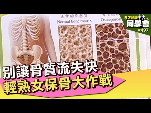 別讓骨質流失快 輕熟女保骨大作戰【57健康同學會】第497集 2012年