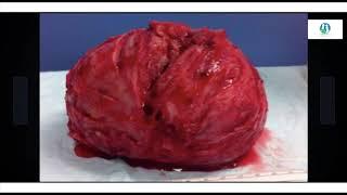 CHRONIQUES SANTE   Fibrome