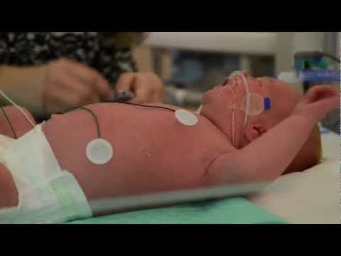 Brain Deficits in Preemies May Begin Before Birth