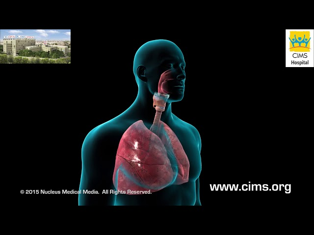 Bronchoscopy (Gujarati) - CIMS Hospital