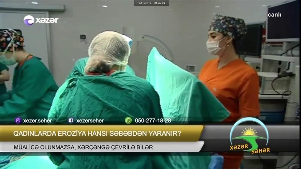 Xəzər TV. Xəzərin səhəri. Uşaqlıq boynu eroziyası