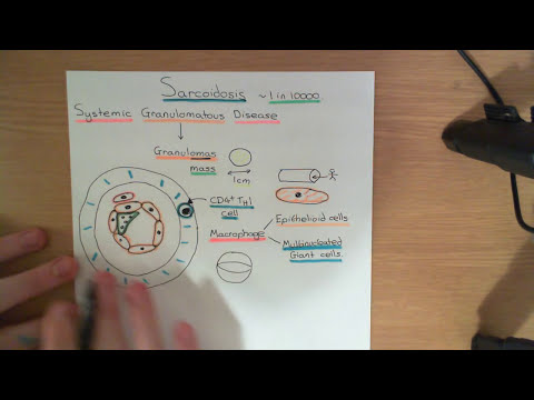 Sarcoidosis Part 1