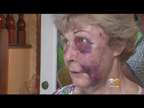 Torrance Woman Recounts Terrifying Ordeal During Home Invasion