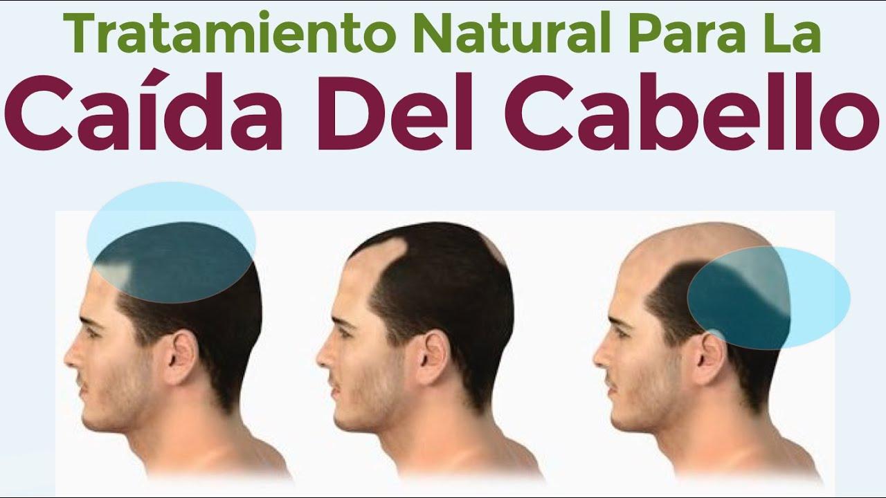 Sabor ecuación Aplaudir  El Mejor Tratamiento Natural Contra La Caída Del Cabello - Como detener la  calvicie - YouTube