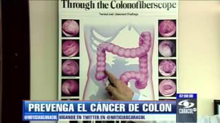 Prevenga el cáncer de colon