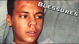 MES PIRES BLESSURES #VlogPJ - Bodytime