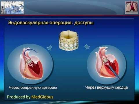 Стеноз митрального клапана: причины диагностика лечение