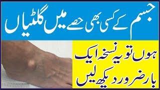 Health In Urdu Gilti ka Ilaj Jisam Main Gilti ka Ilaj Gilti ki Dawa Jism Ki Giltiyan