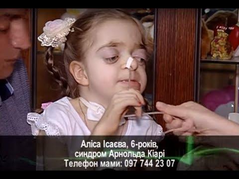 ТРК ВіККА: Подаруй життя. Аліса Ісаєва, 6-років, синдром Арнольда Кіарі
