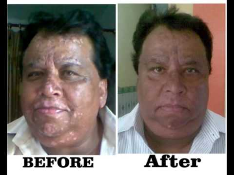 FREE MEDICINE OF WHITE PATCHES (LEUCODERMA)