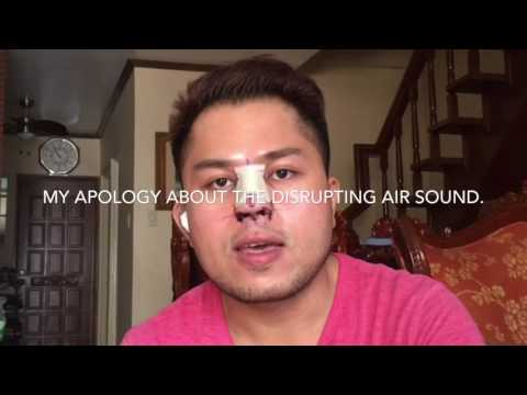 Male Rhinoplasty VLOG-1 | PHILIPPINES | Asian Nose Lift | Surgery Day | Day 1 | Darwin Baguio Gevero