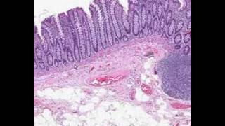 Shotgun Histology Colon