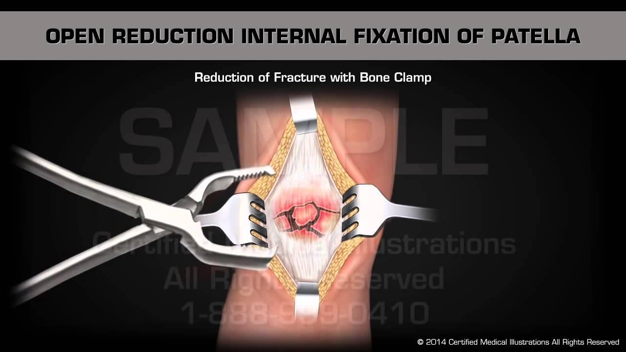 Операция по веберу коленного сустава хруст в тазобедренных суставах причины и лечение