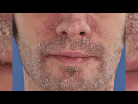Псориаз на лице: фото, начальная стадия, симптомы на ушах