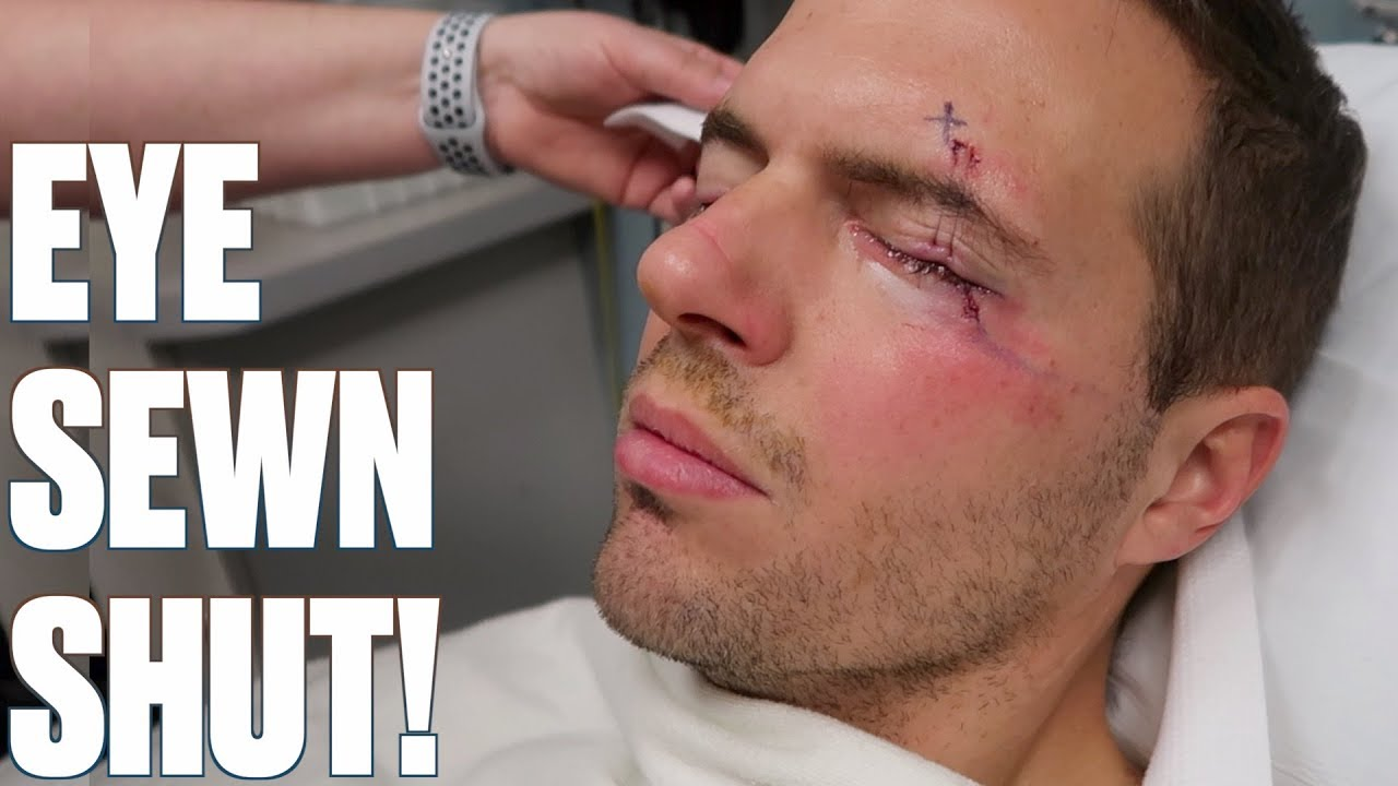 eye-sewn-shut-after-surgery-crazy-stitches-after-surgery-to-remove-mass-under-my-eye
