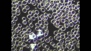 Dark Microscopy Live  My Blood Analysis