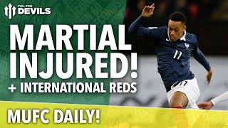 Anthony Martial Injured! | MUFC Daily | Manchester United