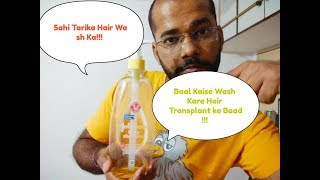 How to Wash Hair After Hair Transplant As Per Doctor