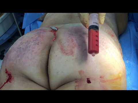 Another Revision Liposuction with Dent Correction and BBL with Dr. Hughes