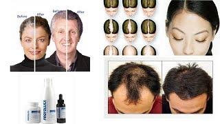 Profollica Hair Loss Treatment By Health Care360