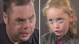 Disfigured Veteran with Scars Says Hi to 5-Year-Old, and Her Response Brings Millions to Tears