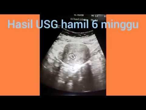 Hasil Usg Hamil 6 Minggu Sudah Terlihat Embrio Nya Tp Keadaan Nya Lemah Youtube