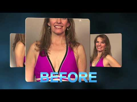 Utah Natural Breast Augmentation Before & After Testimonial