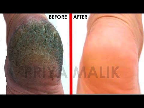 GET Rid Of Cracked Heels In Just 1 day | Home Remedies for Cracked Heels- Priya Malik