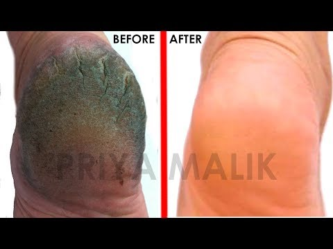 GET Rid Of Cracked Heels In Just 1 day | Home Remedies for Cracked Heels- Priya Malik