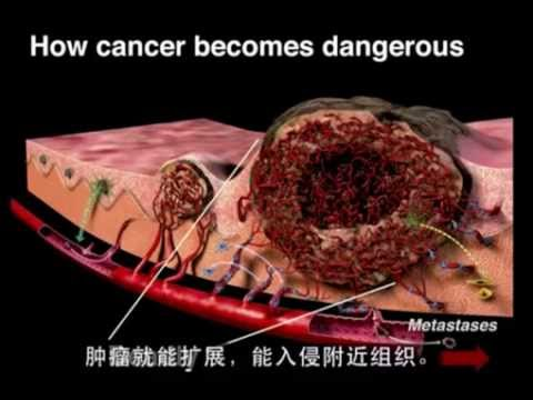 food to starve cancer Dr william li, md asks can we eat to starve cancer here is an amazing talk that describes how the process of angiogenesis, by which cancer cells make new networks.