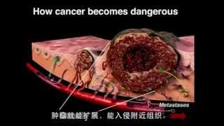 Video 4 Anti Angiogenesis What Food Can Starve Cancer Part 2 download MP3, 3GP, MP4, WEBM, AVI, FLV Juni 2018