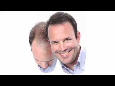 Evitar la caida de pelo en hombres