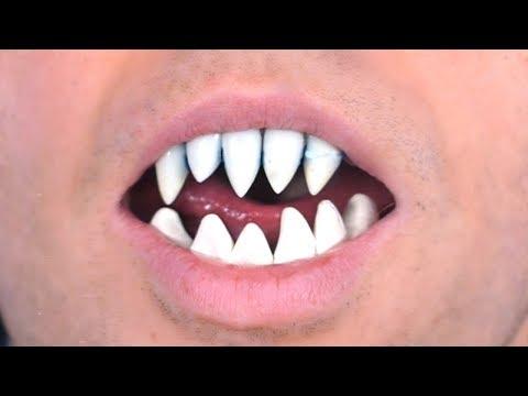 Shark Teeth Grow In Mouth!