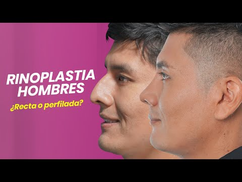 RINOPLASTIA HOMBRES ¿RECTA