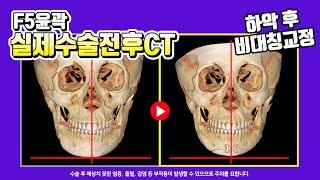 윤곽2종(사각턱축소+턱…